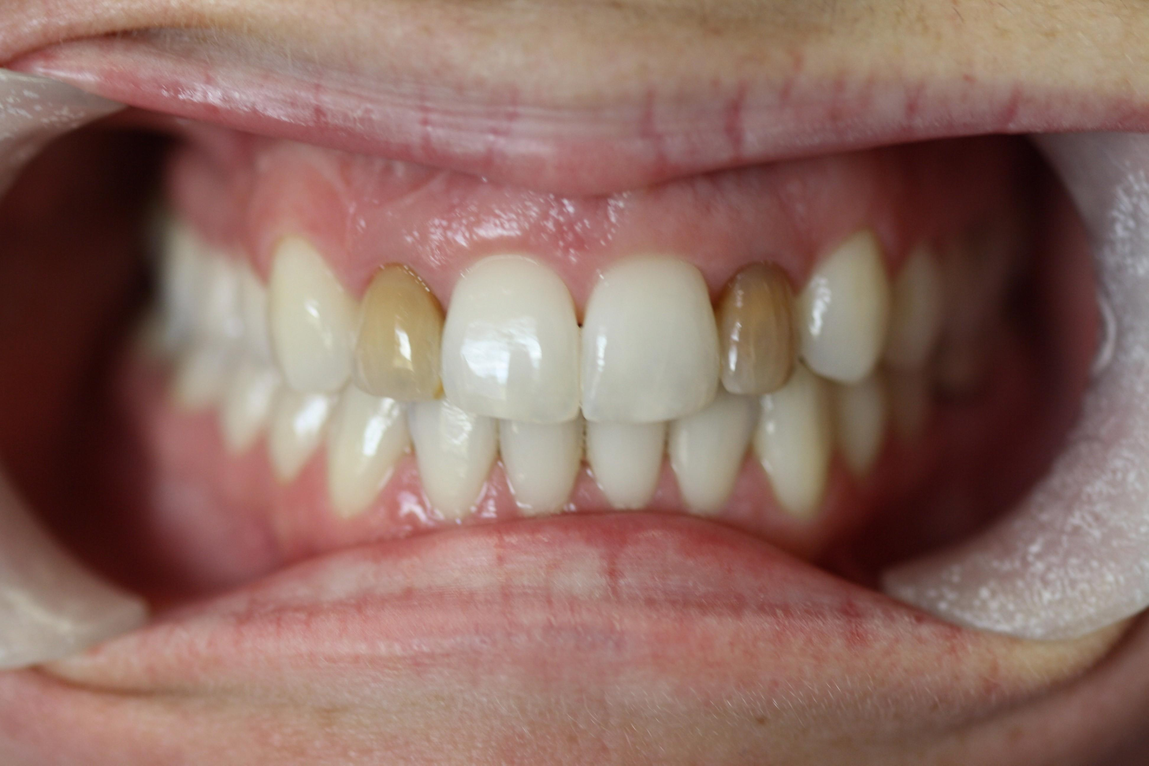 Severe Tooth Discoloration from Root Canal Therapy